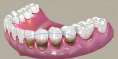 牙龈萎缩是什么,可以治疗吗