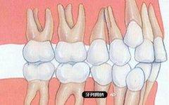 上颌前突,牙列拥挤的矫治方案是什么