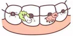 牙齿矫正期间护理须知