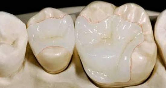 常见的补牙方式和补牙费用