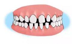 牙齿越来越来稀了怎么办