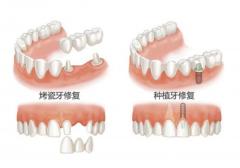 牙齿固定修复价格