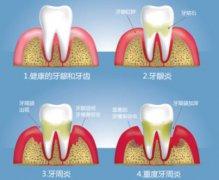 牙龈发炎会使牙齿松动吗