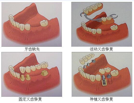 医院装一颗假牙多少钱