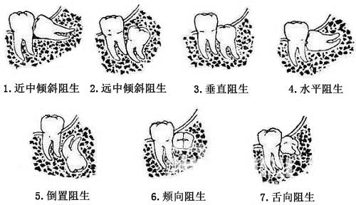 智齿的类型