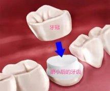 """牙缝变大做哪种牙""""套""""比较好?"""