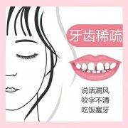 牙齿变稀是什么原因