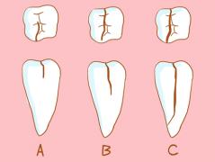 大牙隐裂做烤瓷牙好还是种植牙好?
