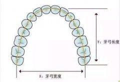 牙齿拥挤是怎么戴牙套把牙齿矫正整齐的?