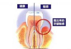 喝冷热水牙齿敏感,这是怎么回事