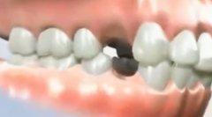 牙齿做正畸拔牙的目的和原则