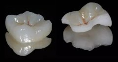牙齿嵌体不能用医保卡吗
