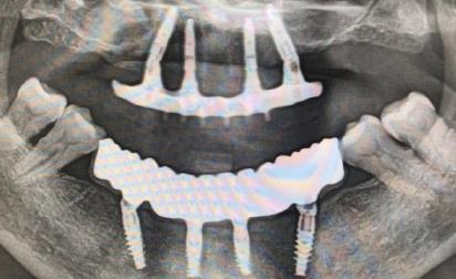 种植牙的X光图片