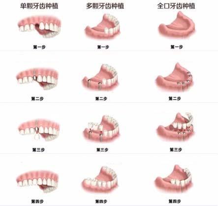 比种植牙更好的方法?
