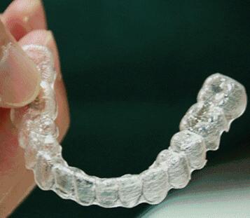 隐形透明牙套的样子