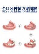 深圳种植牙价格表