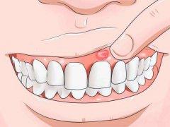 牙龈肿痛怎么办?快速止疼消肿有妙招