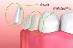 瓷贴面怎么磨牙,磨牙后是什么样的