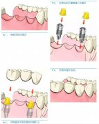 连续缺了3颗牙,怎么做种植牙?