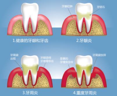 健康牙齿和有牙周病的牙齿