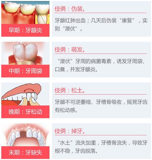 牙龈炎到牙周炎的发展过程