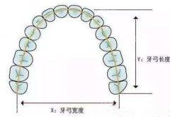 如何判断牙齿拥挤程度 牙齿拥挤度分类图片