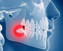 简单几招,教你自己判断牙疼的原因