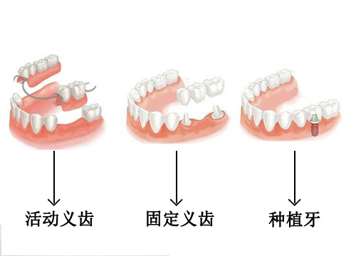 缺牙后三种假牙修复