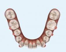 矫正龅牙一定要拔四颗牙吗,有没有其他的方案
