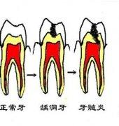 急性牙髓炎不疼了还要不要治疗