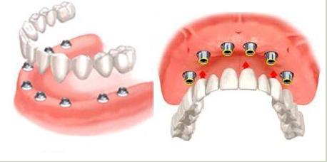 常见半口种植牙