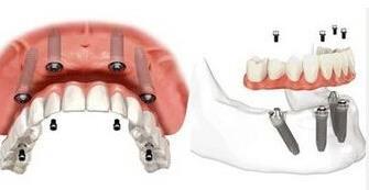 4颗种植体修复半口种植牙