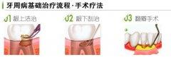 什么是牙周翻瓣术,是干什么用的