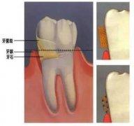 牙齿比较容易长牙结石,洗牙后几个月又长了?