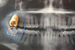大牙经常痛是蛀牙吗?要怎么治疗?