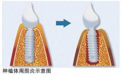 种植牙定期维护是什么,需要多少钱