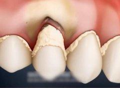 牙齿深刮治疗后多久能恢复正常