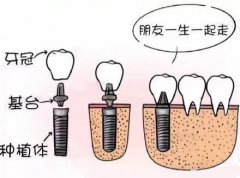 上面四颗门牙意外磕掉了,一般要种植几颗牙