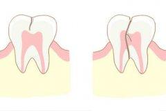 牙齿隐裂做牙套是怎么做的,要磨邻牙搭桥吗