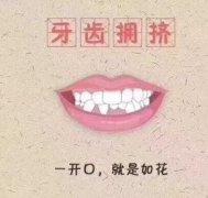 牙齿拥挤1度是不是可以不用拔牙