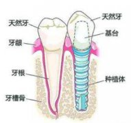 种植牙保护得好能使用多少年