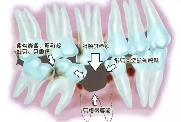 缺牙太久会造成的危害