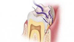牙齿黑缝是什么情况?要补牙吗