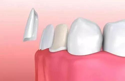 磨牙后做瓷贴面示意图