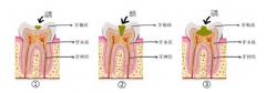 一颗蛀牙多久会蛀完?哪种是不能补的蛀牙