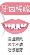 牙齿稀疏当天就能开始矫正吗