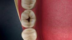 牙齿上的黑点不管它没关系?它本事可大着呢!