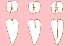 牙齿劈裂到牙根有感觉吗 牙齿裂了需要拔除的图片