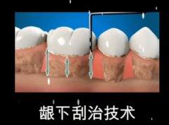 牙齿刮治超声好还是手动好