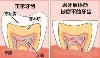 磨牙的危害